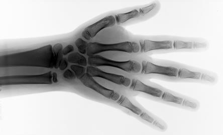 hand x ray radiotherapy